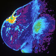 Magnetic Resonance Imaging of a breast