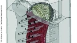 Image: A graphic showing an implant; Copyright: D. Chen et al., Science Translational Medicine (2020)