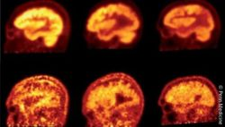 Image: PET imaging is used for the analysis of the brain's glucose consumption; Copyright: Penn Medicine