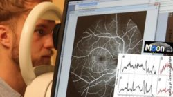 Image: man getting his eyes scanned; Copyright: Ewald Unger / Medical University of Vienna