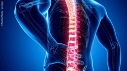 Image: Symbol image of a spinal column; Copyright: PantherMedia  / pixologic