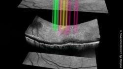 Image: three gray layers on black ground, rainbow-coloured lights shine through the layers; Copyright: Novai/UCL/Western Eye Hospital