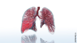 Image: Digital Twin of the lungs; Copyright: Ebenbuild