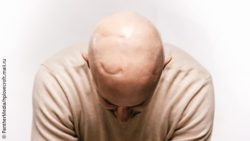 Image: A young man with a bald head shows the scar of skull surgery; Copyright: PantherMedia/hplovecraft.mail.ru