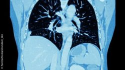 Image: CT image of the human thorax; Copyright: PantherMedia/stockdevil_666