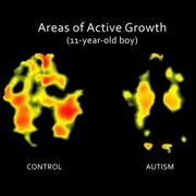 Photo: Brain-areas of active growth
