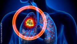 Graphic: Lung cancer; Copyright: panthermedia.net/decade3d