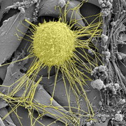 Photo: Breast cancer cell