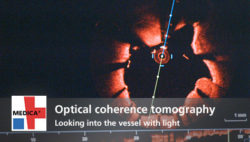 "Image: Preview picture of video ""Optical coherence tomography"""