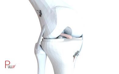 PULLUP® suspensory fixation device