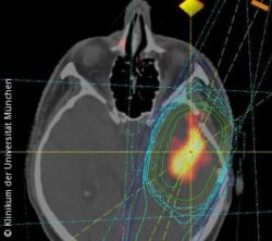 Photo: irradiation planning of a glioblastoma
