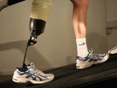 Photo: Prosthetic limb