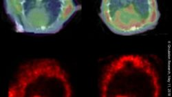 Image: PET scan showing clumping proteins in rat hearts (top). The enlarged heart (right) is one with heart failure. Other PET scans showing blood flow; Copyright: Circulation Research, May 11, 2018