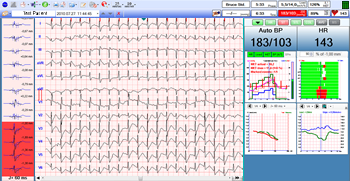 Cardiospy Resting-Stress ECG Software