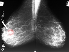 Photo: A mammogram with a marked area