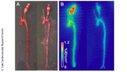 Image: Examples of ex vivo photography (left) and autoradiography (right) of aortae and carotid arteries ; Copyright: Yale Cardiovascular Research Center