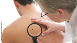 Image: doctor examines male patients with the magnifying glass for skin cancer.; Copyright: panthermedia.net/alexraths