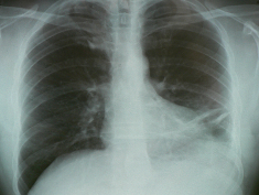 Photo: Lung in X-ray