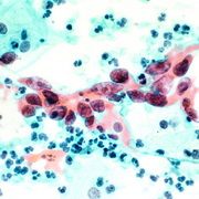 Photo: Cervical cancer: large dots, spread among little dots