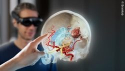 Image: A hand is touching a three-dimensional rendering of a human skull with blood vessel; Copyright: Brainlab