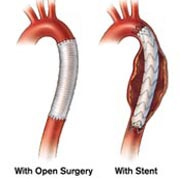 Aneurysm repair with open surgery and with stent