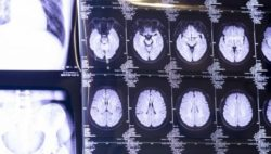 Image: A screen with images of the human brain; Copyright: Messe Düsseldorf