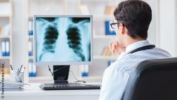 Image: Physician in front of a screen looks at an image of the lung; Copyright: PantherMedia/Elnur_