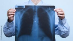 Image: Man is holding an x-ray of the lungs in front of his chest; Copyright: PantherMedia/Jakub Jirsak