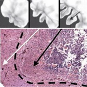 Photo: Computer-generated depictions of a growing tumour