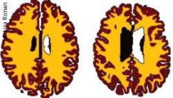 Image: two scans of brains; Copyright: Lisa Ronan