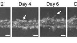 Image: VEGF stimulates the formation of sprouts on the vessel; Copyright: 2018 Yukiko Matsunaga, Institute of Industrial Science, the University of Tokyo