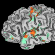Photo: The brain with colored spots showing activation
