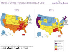 Graphic: Map of premature birth USA
