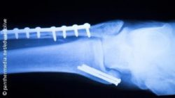 Photo: X-ray of a bone with surgical implants