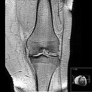 photo: arthritis in the knee, MR image