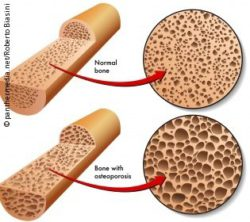 Graphic: Norman bone vs bone with osteoporosis