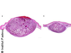 Photo: Histological section of two mouse melanomas