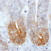 Photo: Intestinal epithelium with tumour stem cells