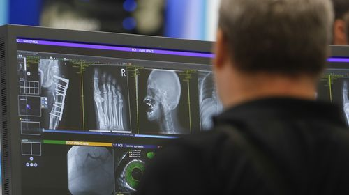 Innovations for medical imaging presented at MEDICA