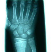 Photo: X-ray of the right hand