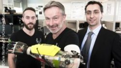 Photo: One-armed man shows a bionic prosthesis of his hand