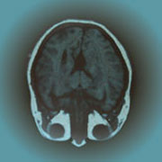 Photo: Image of brain