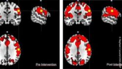 Image: fMRI scans of a stroke patient; Copyright: Raphael Casseb/UNICAMP