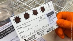 Image: dry blood sample card in laboratory; Copyright: University of Birmingham