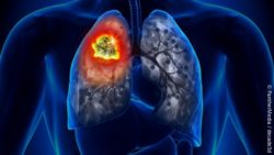 Image: depiction of lung cancer; Copyright: PantherMedia / decade3d