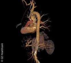 Image: ASiR-V image of the aorta; Copyright: GE Healthcare