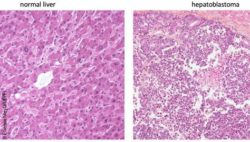 Image: Comparison of normal vs hepatoblastoma liver tissue; Copyright: Etienne Meylan/EPFL