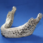 Photo: The artificial jaw bone